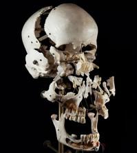beauchene-skull