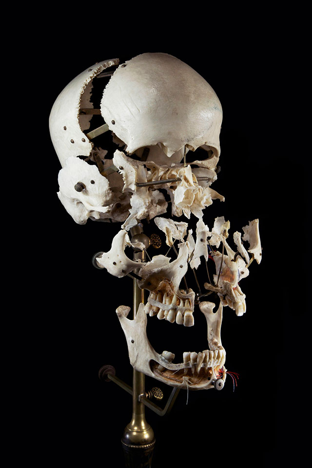 Beauchene human skull