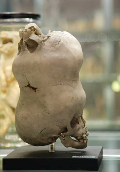 Double skull - Hunterian Museum, London