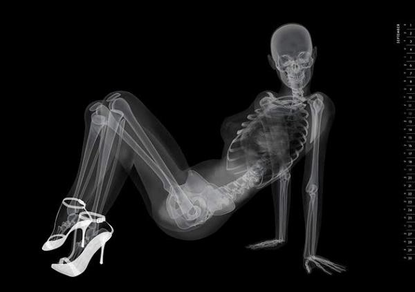 X-ray pin-up