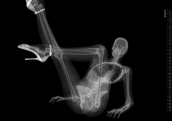 X-ray pin-up