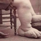 Freak show performer Fannie Mills, the Ohio Big Foot Girl