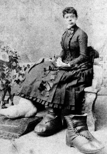 Fanny Mills, the sideshow performer with the biggest feet on Earth