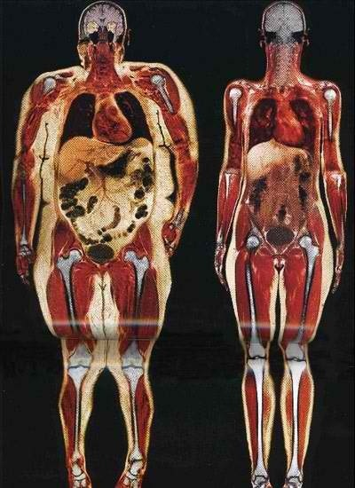 Human body slices