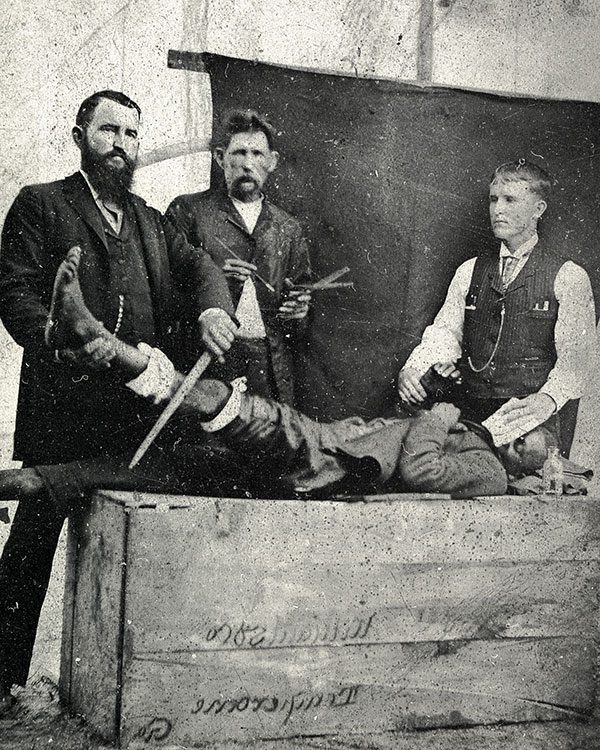 Crawford Long demonstrates an amputation using ether as an anesthetic in a tintype photo c. 1855-1860