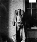 chicago-mummified-body-1903