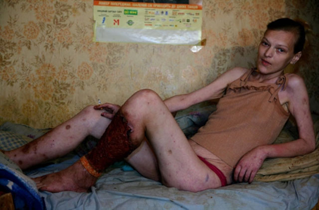 Flesh-eating drug Krokodil from Russia