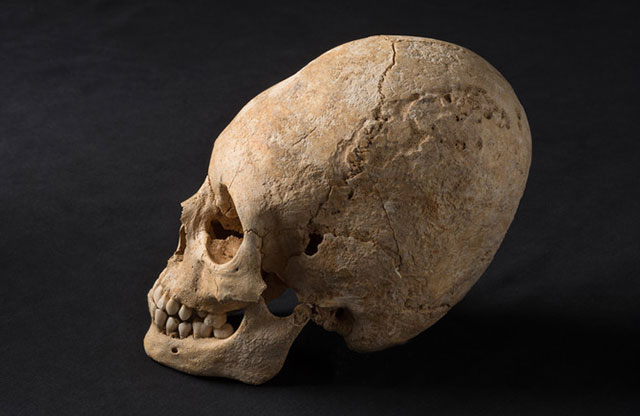 Side view of the elongated skull discovered during an archeological excavation in France