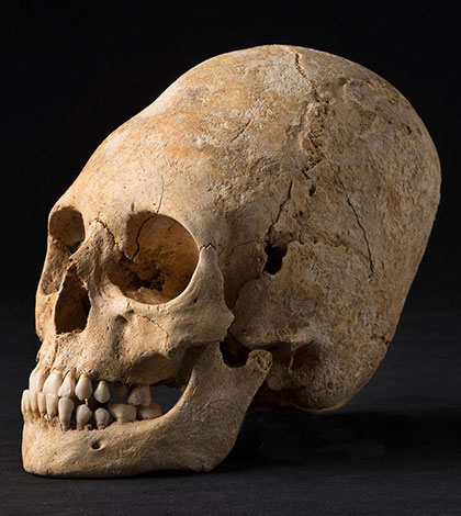 Elongated Skulls In The Juan Navarro Museum In Paracas Peru Elongated-skull-sm
