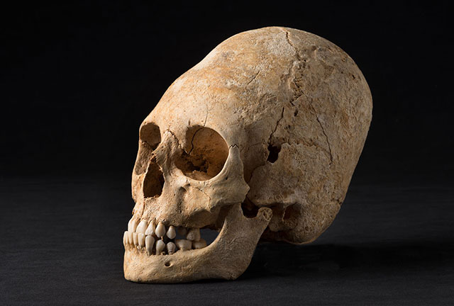 Intentionally deformed elongated skull unearthed in Merovingian period grave in France