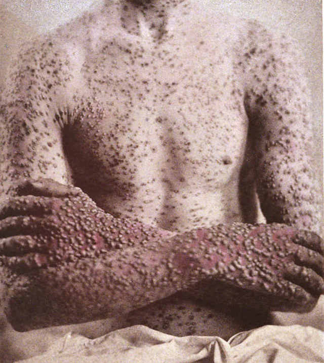Vintage photo of a smallpox patient