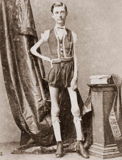 Freak show performer Isaac Sprague, the Living Skeleton
