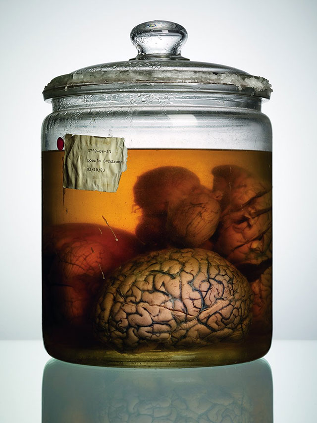 Brain from the Texas State Mental Hospital collection. Photo by Adam Voorhees.