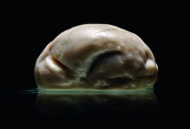 Smooth brain specimen from Malformed