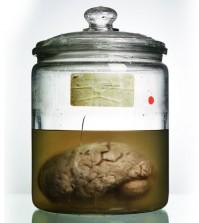 malformed-brain-jar