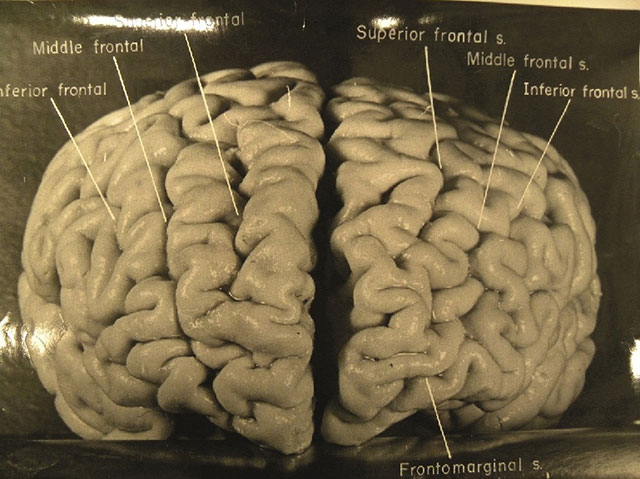 Vintage photo of Einstein's brain from 1955