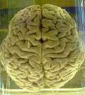 famous-missing-brains-sm