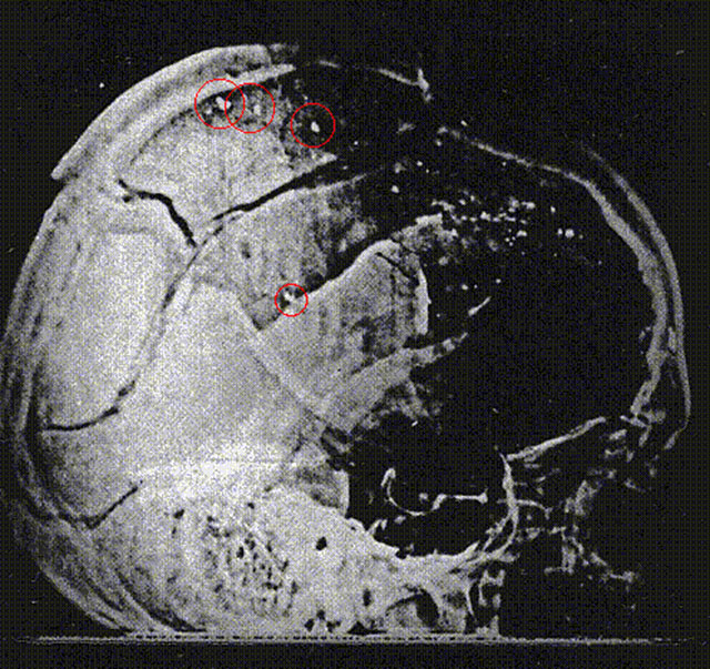 Bullet fragments seen in x-ray of John F. Kennedy's brain