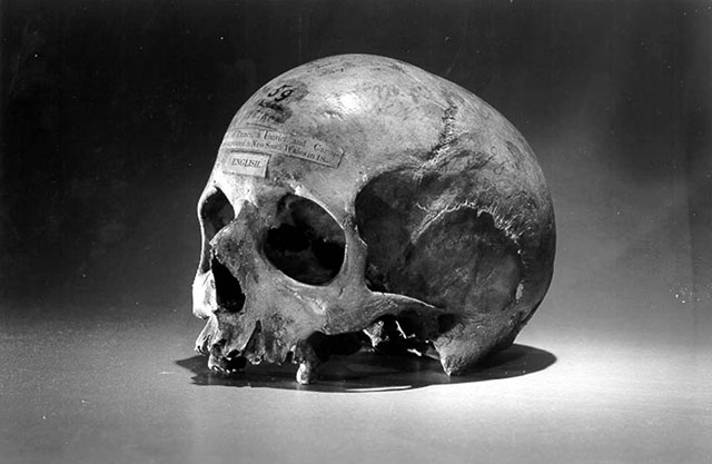 The skull of Tasmanian cannibal killer Alexander Pearce