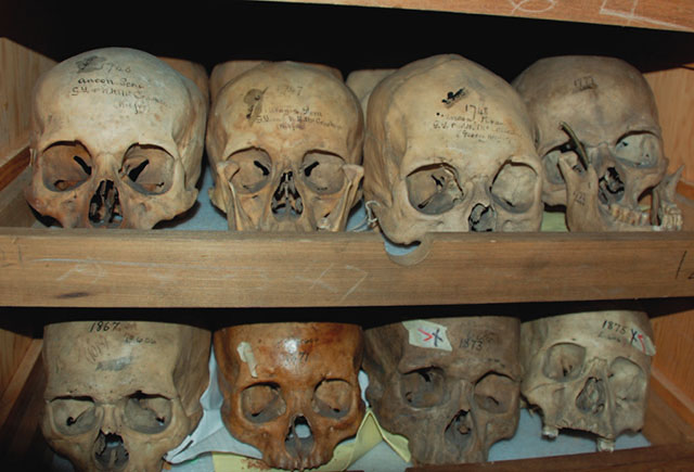 The Morton skull collection