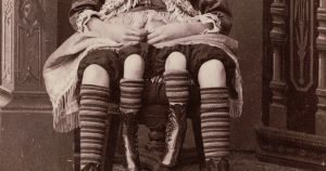 World's most famous circus sideshow performers