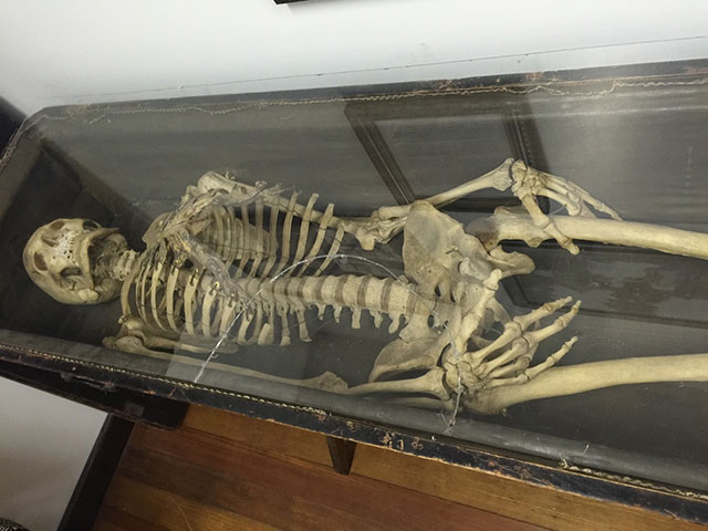 Odd Fellows skeletons