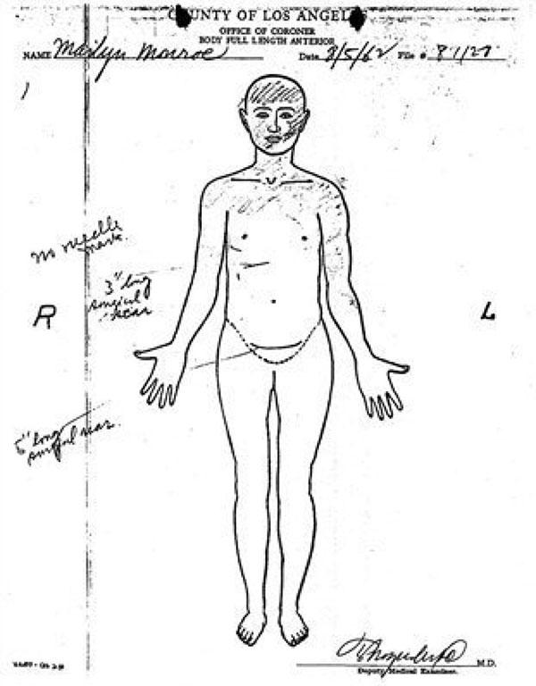 Marilyn Monroe autopsy report