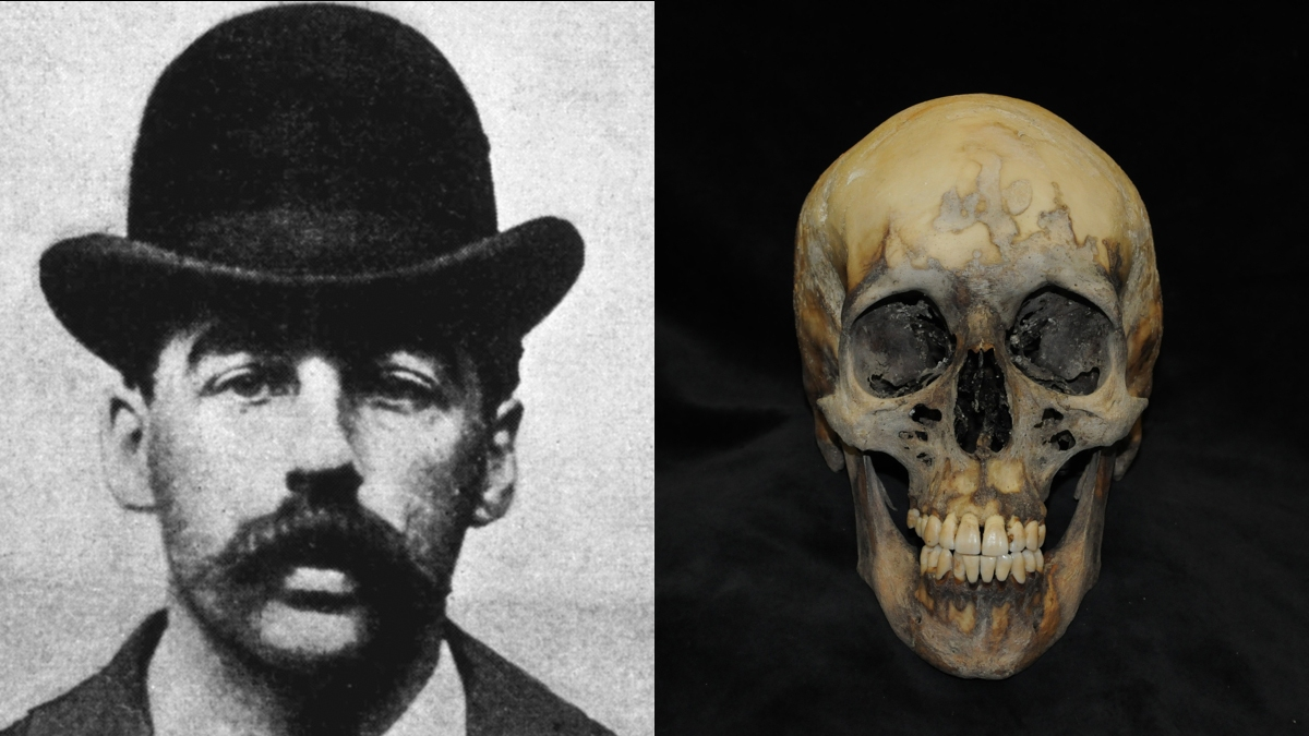 The skull of serial killer H.H. Holmes