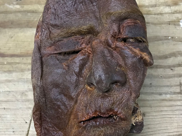 Preserved human face and scalp specimen