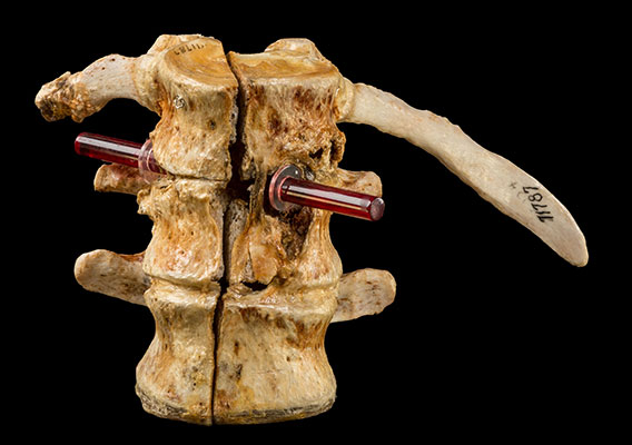 Vertebrae of President James Garfield showing the trajectory of Charles Guitaeu's bullet