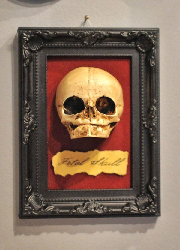 Fetal skull display